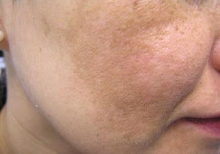 عوارض تیرگی پوست